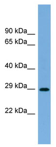 Western blot - Anti-RAB40C antibody (ab104785)