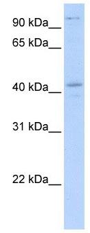 Western blot - Anti-FGD1 antibody (ab104789)