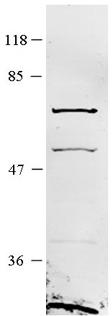 Western blot - Anti-TCP1 eta antibody (ab104790)