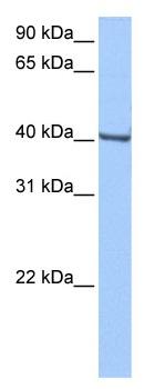 Western blot - Anti-Gbx1 antibody (ab104794)