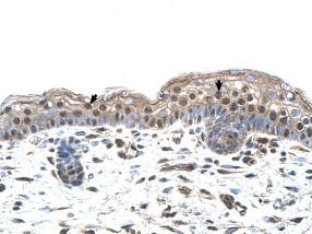 Immunohistochemistry (Formalin/PFA-fixed paraffin-embedded sections) - Anti-MUM1 antibody (ab104803)
