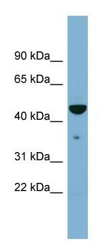 Western blot - Anti-Tapasin antibody (ab104806)