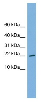 Western blot - Anti-RPS13 antibody (ab104862)