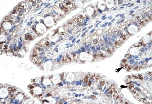 Immunohistochemistry (Formalin/PFA-fixed paraffin-embedded sections) - Anti-Macrophage Inflammatory Protein 4 antibody (ab104867)
