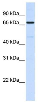 Western blot - Anti-ACSL5 antibody (ab104892)