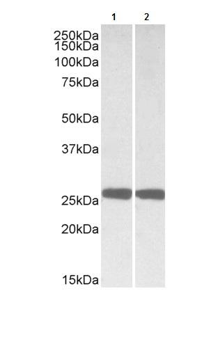 Western blot - Anti-PGP9.5 antibody (ab104938)