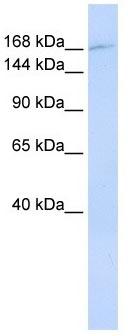Western blot - Anti-ZNF646 antibody (ab104964)