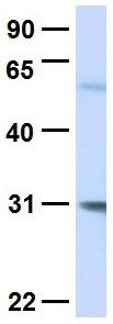 Western blot - Anti-PEX11A antibody (ab105008)