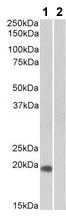 Western blot - Anti-HOXA1 antibody (ab105021)