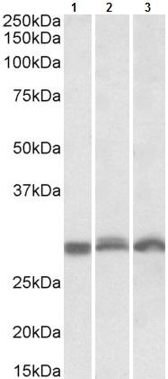 Western blot - Anti-PSMA4 antibody (ab105030)