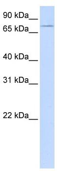 Western blot - Anti-UBASH3A antibody (ab105058)