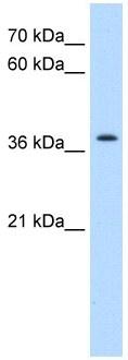 Western blot - Anti-Transmembrane protein 30A antibody (ab105062)
