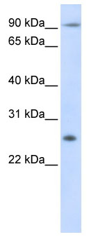 Western blot - Anti-TSPAN31 antibody (ab105072)