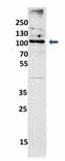 Western blot - Anti-EXOC6 antibody - N-terminal (ab105075)