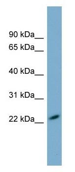 Western blot - Anti-MXRA7 antibody (ab105153)
