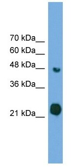 Western blot - Anti-RAB37 antibody (ab105189)