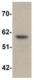 Western blot - Anti-SLC39A5 antibody (ab105194)