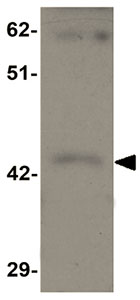 Western blot - Anti-SHISA9 antibody (ab105208)
