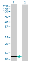 Western blot - Anti-GNLY antibody (ab105222)