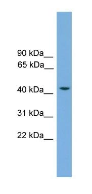 Western blot - Anti-RASSF8 antibody (ab105316)