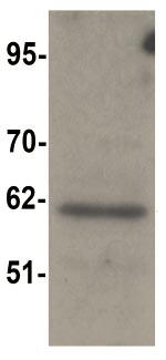 Western blot - Anti-SRP1 antibody (ab105346)