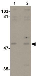 Western blot - Anti-KPNA3 antibody (ab105348)