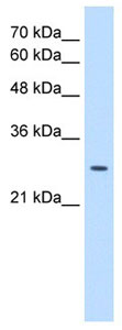 Western blot - Anti-emopamil binding protein antibody (ab105374)