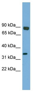Western blot - Anti-EHF antibody (ab105375)