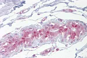 Immunohistochemistry (Formalin/PFA-fixed paraffin-embedded sections) - Anti-EHF antibody (ab105375)