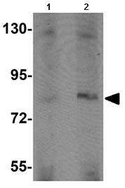 Western blot - Anti-APBA2 antibody (ab105396)