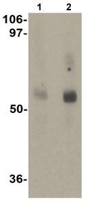 Western blot - MFSD2A antibody (ab105399)