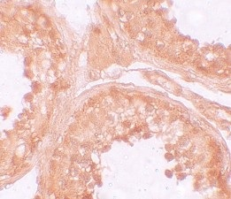 Immunohistochemistry (Formalin/PFA-fixed paraffin-embedded sections) - Anti-NLRP9 antibody (ab105413)