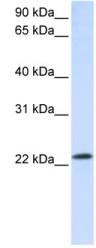 Western blot - Anti-Rab18 antibody (ab105519)