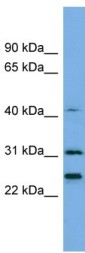 Western blot - Anti-Histone H1.4 antibody (ab105522)