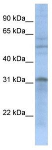 Western blot - Anti-MTCH2 antibody (ab105527)