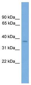 Western blot - Anti-Six3 antibody (ab105529)