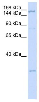 Western blot - Anti-ZNF687 antibody (ab105544)