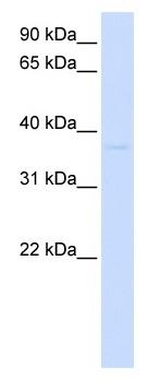 Western blot - Anti-GDAP1L1 antibody (ab105555)
