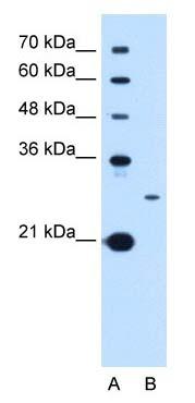 Western blot - Anti-TSPAN15 antibody (ab105567)