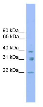 Western blot - Anti-RNF167 antibody (ab105568)