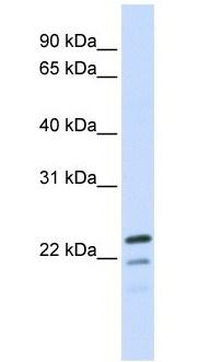 Western blot - Anti-REEP1 antibody (ab105583)