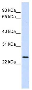 Western blot - Anti-PRRG3 antibody (ab105642)
