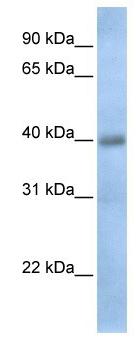 Western blot - Anti-TXNDC15 antibody (ab105648)