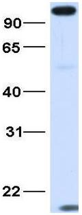 Western blot - Anti-MICALL1 antibody (ab105665)