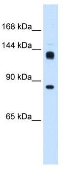 Western blot - Anti-hunchback antibody (ab105674)