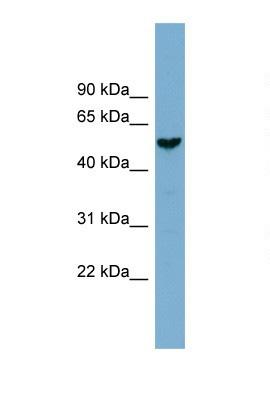 Western blot - Anti-FAM83E antibody (ab105689)