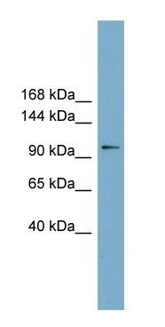 Western blot - Anti-FTSJD1 antibody (ab105699)