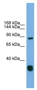 Western blot - Anti-FSTL5 antibody (ab105703)