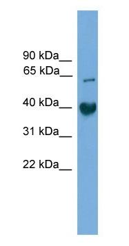 Western blot - Anti-TMEM130 antibody (ab105723)
