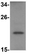 Western blot - Anti-PLAC2 antibody (ab105734)